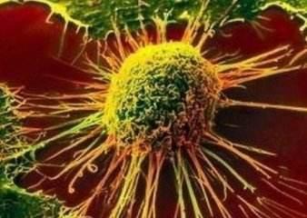 利妥昔单抗注射液已成功上市用于淋巴癌(图1)